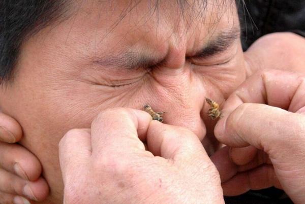 Лечение пчелиным укусам у носа