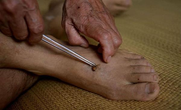 Лечение пчелыми ног и суставов